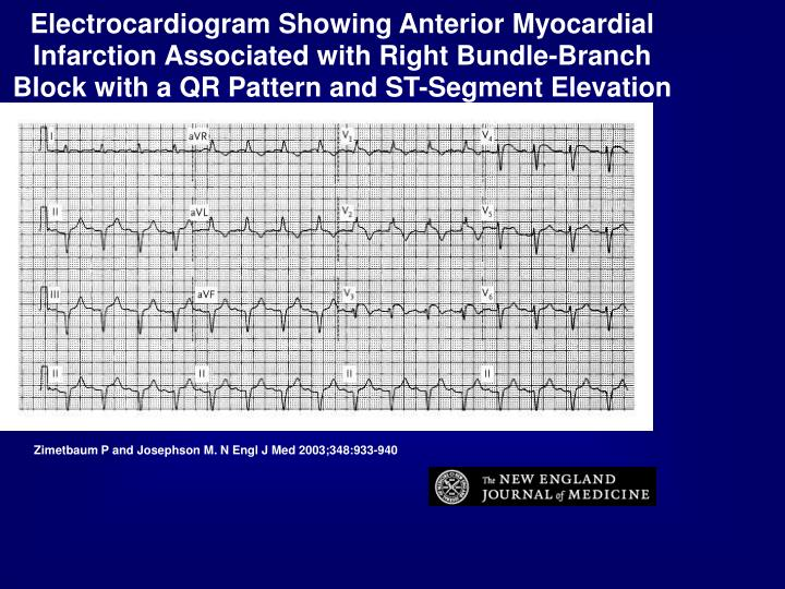 Electrocardiogram Showing Anterior Myocardial Infarction Associated with Right Bundle-Branch Block with a QR Pattern and ST-Segment Elevation