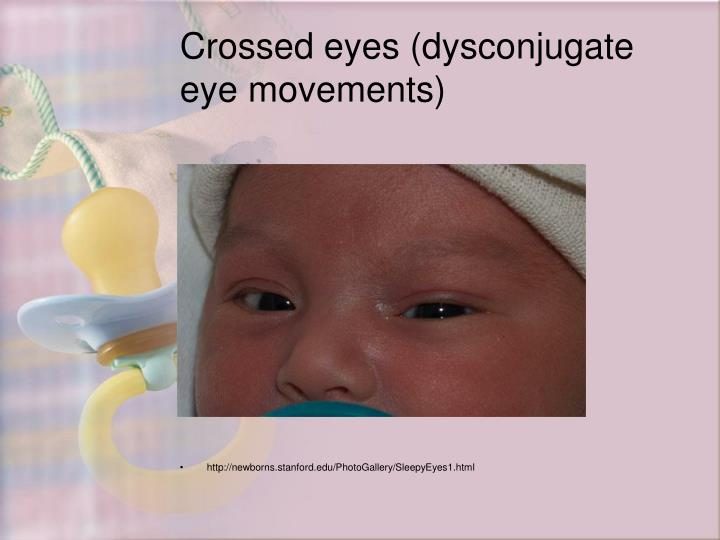 Crossed eyes (dysconjugate eye movements)
