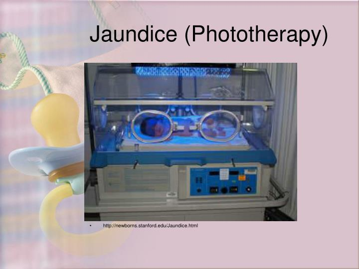 Jaundice (Phototherapy)