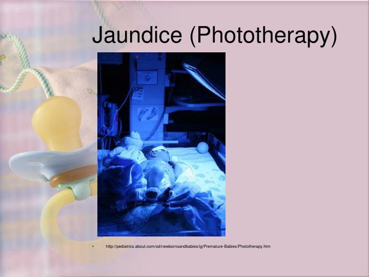 http://pediatrics.about.com/od/newbornsandbabies/ig/Premature-Babies/Phototherapy.htm