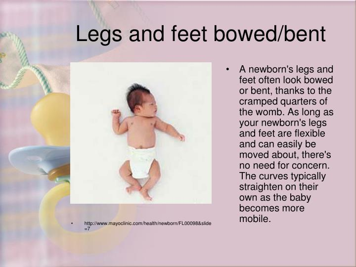 http://www.mayoclinic.com/health/newborn/FL00098&slide=7