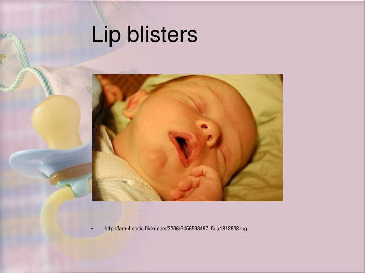 Lip blisters