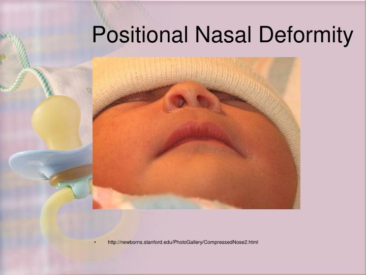 Positional Nasal Deformity
