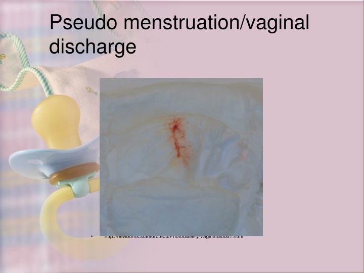Pseudo menstruation/vaginal discharge