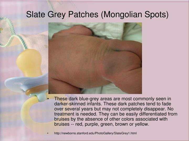 Slate Grey Patches (Mongolian Spots)