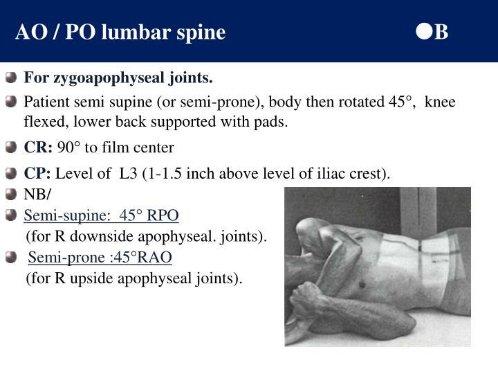 AO / PO lumbar spine
