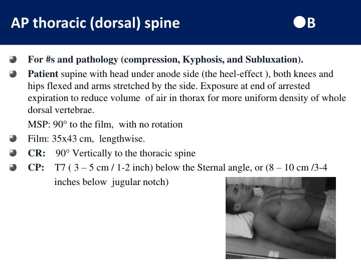 AP thoracic (dorsal) spine