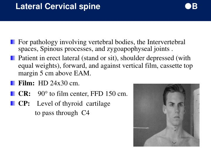 Lateral Cervical spine