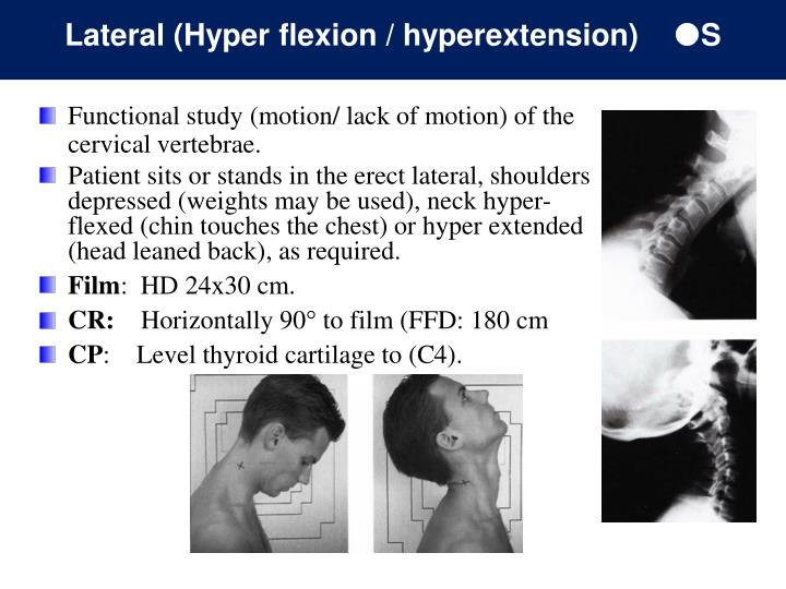 Lateral (Hyper flexion / hyperextension)