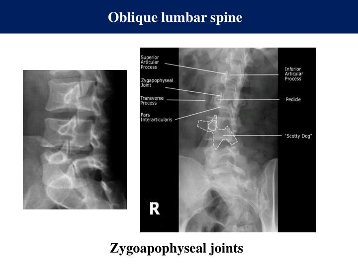 Oblique lumbar spine