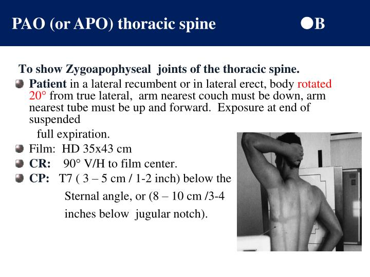 PAO (or APO) thoracic spine