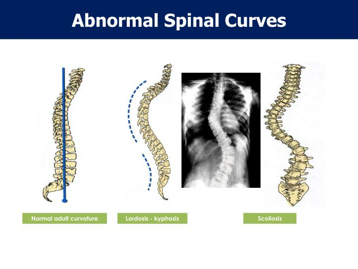 Abnormal Spinal Curves