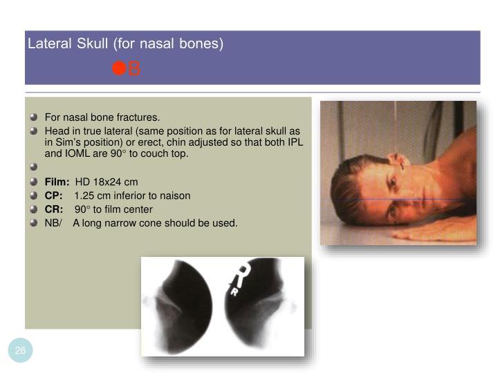 Lateral Skull (for nasal bones)