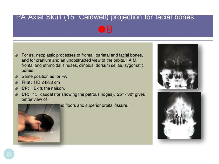 PA Axial Skull (15