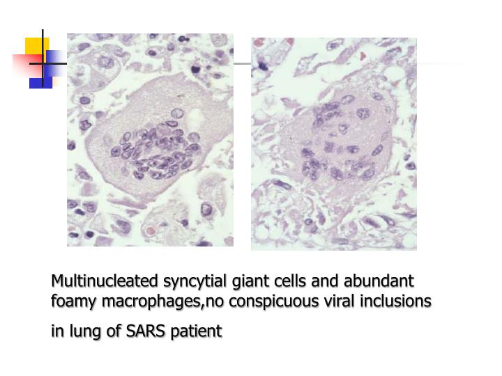 Multinucleated syncytial giant cells and abundant foamy macrophages,no conspicuous viral inclusions