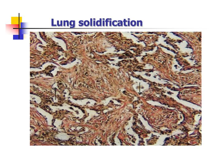 Lung solidification