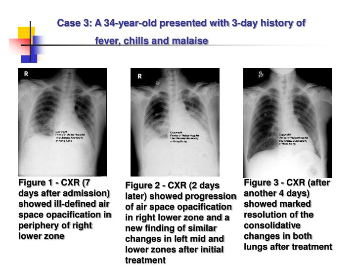 Case 3: A 34-year-old presented with 3-day history of
