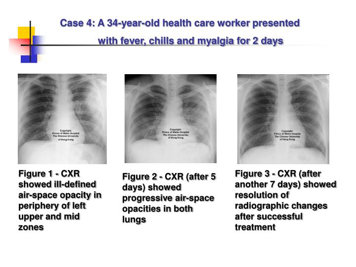 Case 4: A 34-year-old health care worker presented