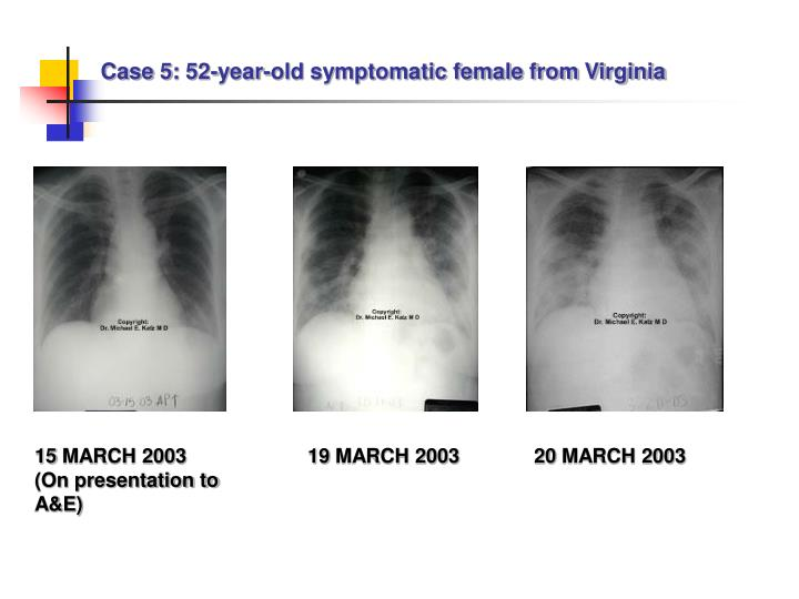 Case 5:
