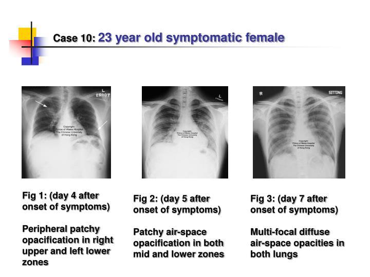 Case 10: