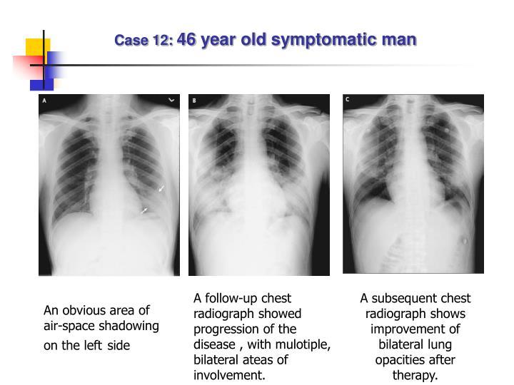 Case 12: