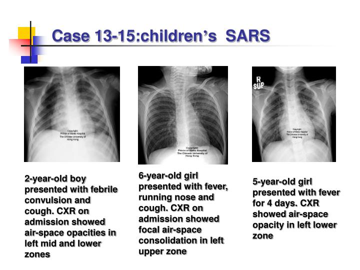 Case 13-15:children