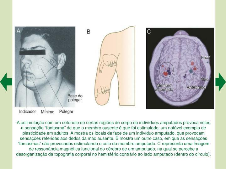 A estimulao com um cotonete de certas regies do corpo de indivduos amputados provoca neles a sensao fantasma de que o membro ausente  que foi estimulado: um notvel exemplo de plasticidade em adultos. A mostra os locais da face de um indivduo amputado, que provocam
