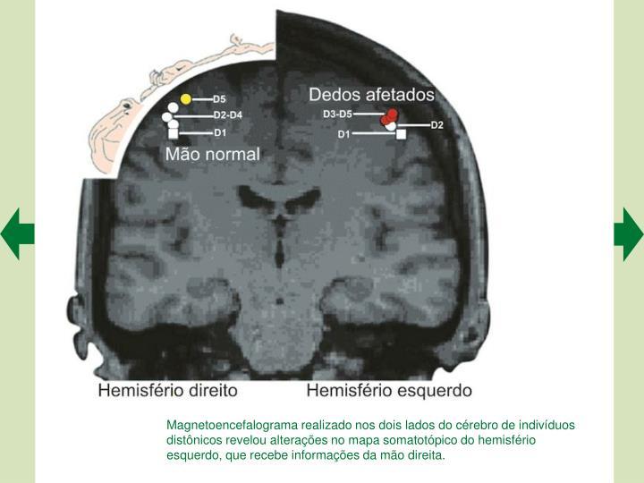 Magnetoencefalograma realizado nos dois lados do crebro de indivduos distnicos revelou alteraes no mapa somatotpico do hemisfrio esquerdo, que recebe informaes da mo direita.