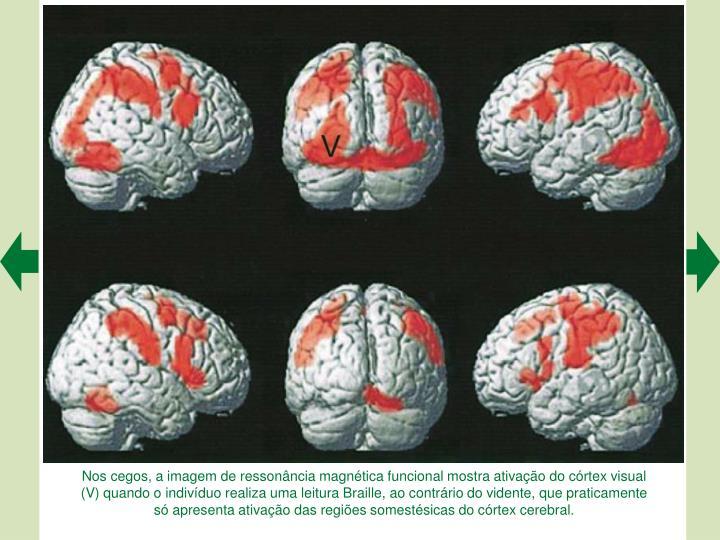 Nos cegos, a imagem de ressonncia magntica funcional mostra ativao do crtex visual (V) quando o indivduo realiza uma leitura Braille, ao contrrio do vidente, que praticamente s apresenta ativao das regies somestsicas do crtex cerebral.