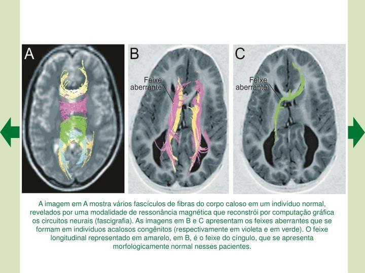 A imagem em A mostra vrios fascculos de fibras do corpo caloso em um indivduo normal, revelados por uma modalidade de ressonncia magntica que reconstri por computao grfica os circuitos neurais (fascigrafia). As imagens em B e C apresentam os feixes aberrantes que se formam em indivduos acalosos congnitos (respectivamente em violeta e em verde). O feixe longitudinal representado em amarelo, em B,  o feixe do cngulo, que se apresenta morfologicamente normal nesses pacientes.