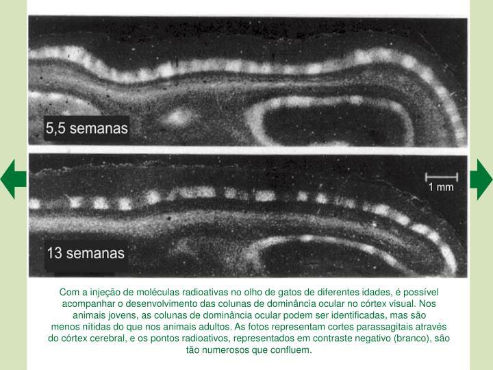 Com a injeo de molculas radioativas no olho de gatos de diferentes idades,  possvel acompanhar o desenvolvimento das colunas de dominncia ocular no crtex visual. Nos animais jovens, as colunas de dominncia ocular podem ser identificadas, mas so