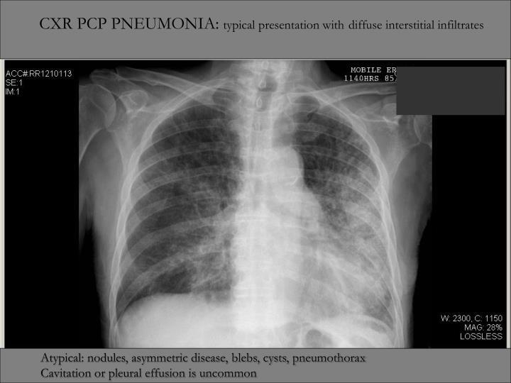 CXR PCP PNEUMONIA: