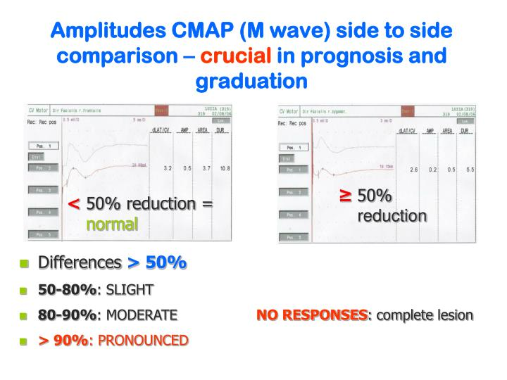 Amplitudes CMAP (M wave) side to side comparison