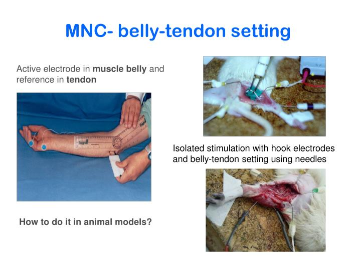 MNC- belly-tendon setting