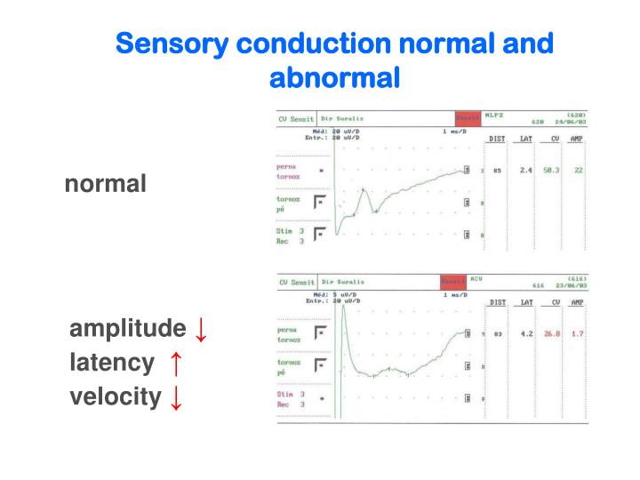 Sensory conduction normal and abnormal