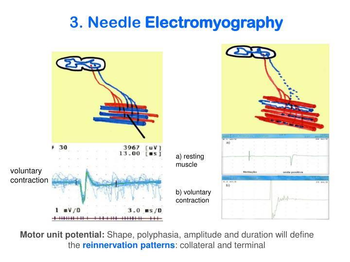3. Needle