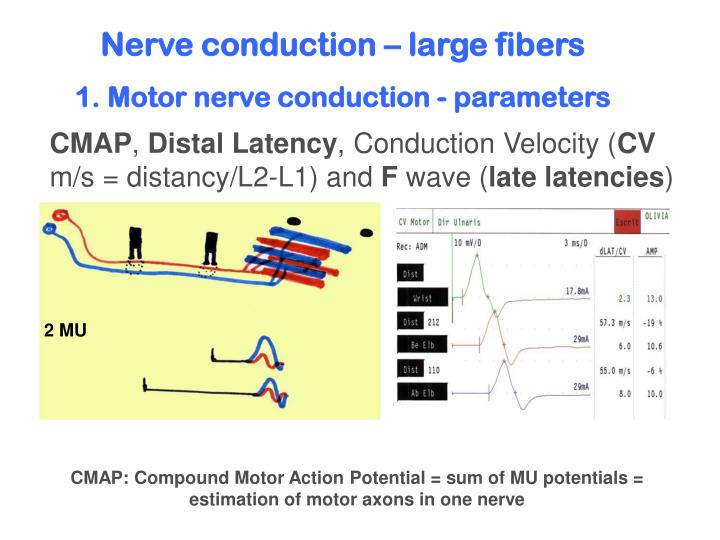 Nerve conduction – large fibers
