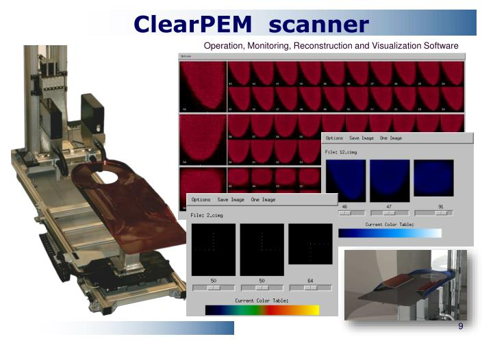 ClearPEM  scanner
