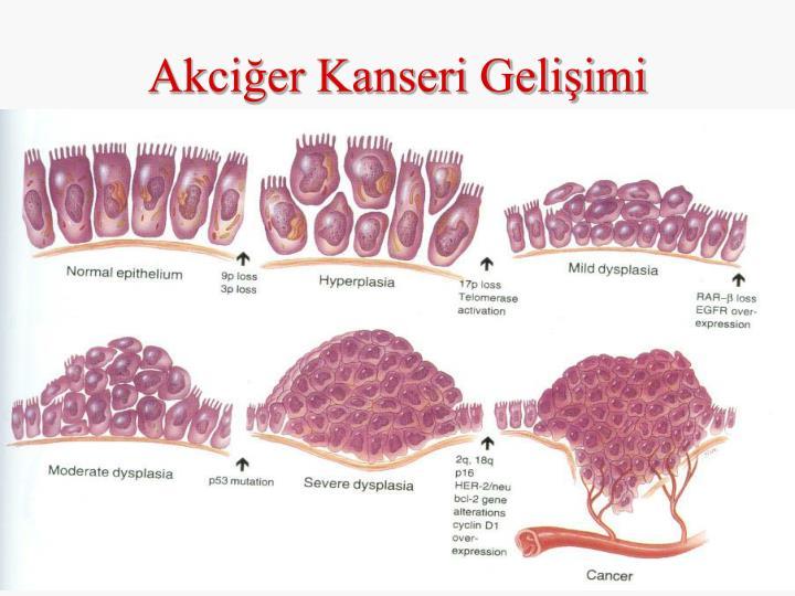 Akciğer Kanseri Gelişimi