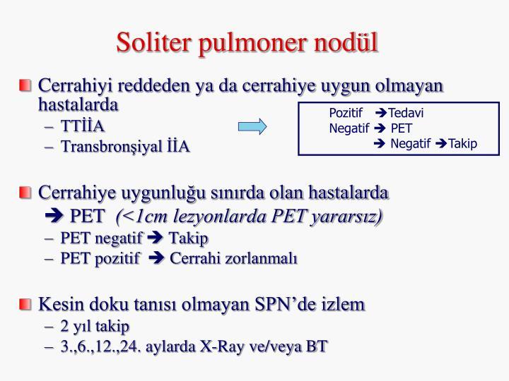 Soliter pulmoner nodül