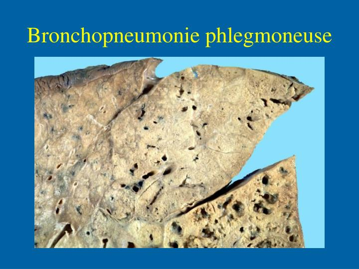 Bronchopneumonie phlegmoneuse