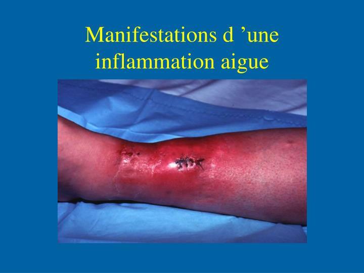 Manifestations d'une inflammation aigue