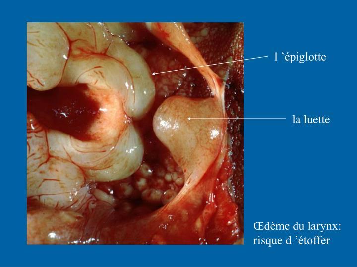 l'épiglotte