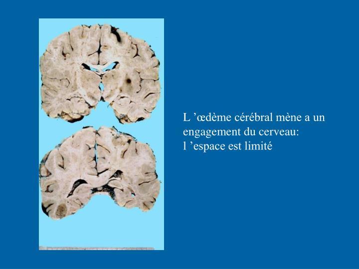 L'œdème cérébral mène a un engagement du cerveau: l'espace est limité