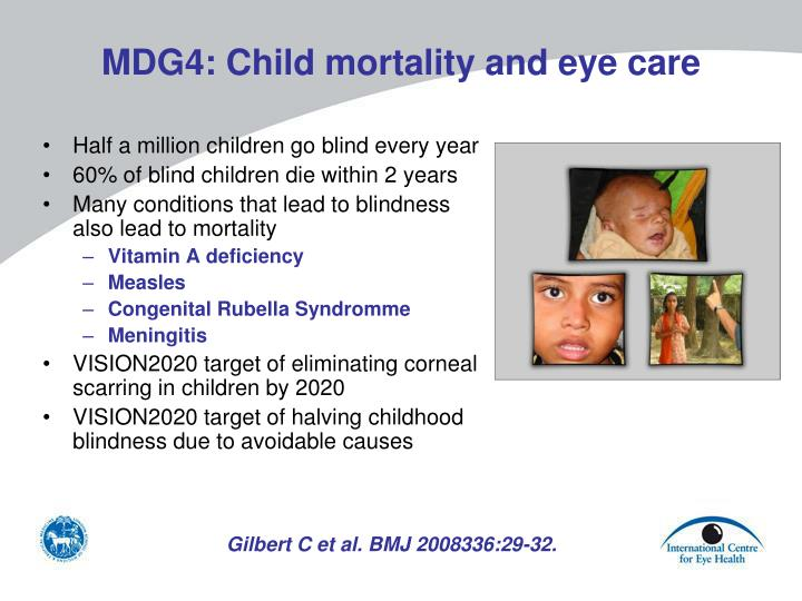 MDG4: Child mortality and eye care