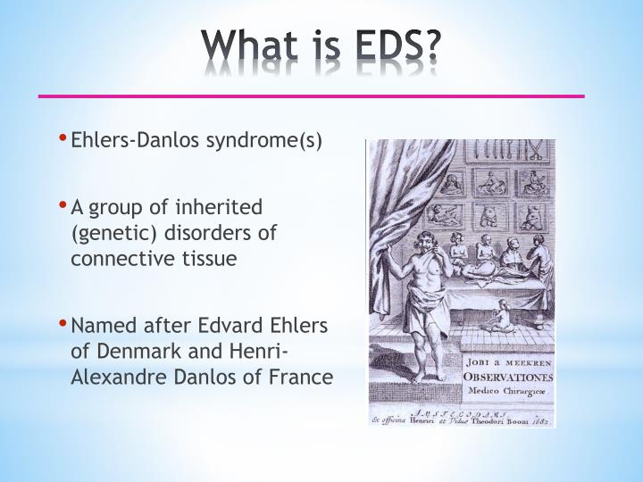 What is eds