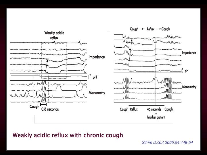Weakly acidic reflux with chronic cough