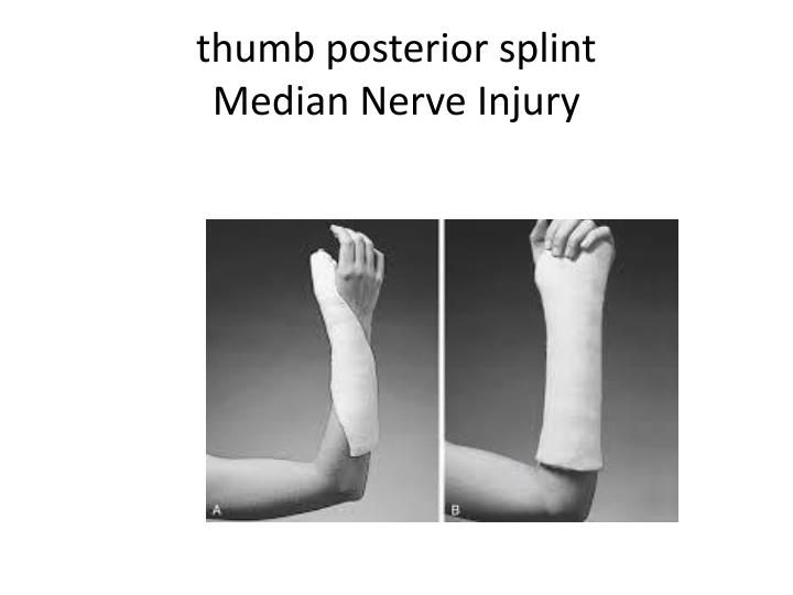 Ppt Splints For The Nbcot Powerpoint Presentation Id