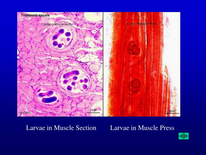 Larvae in Muscle Section