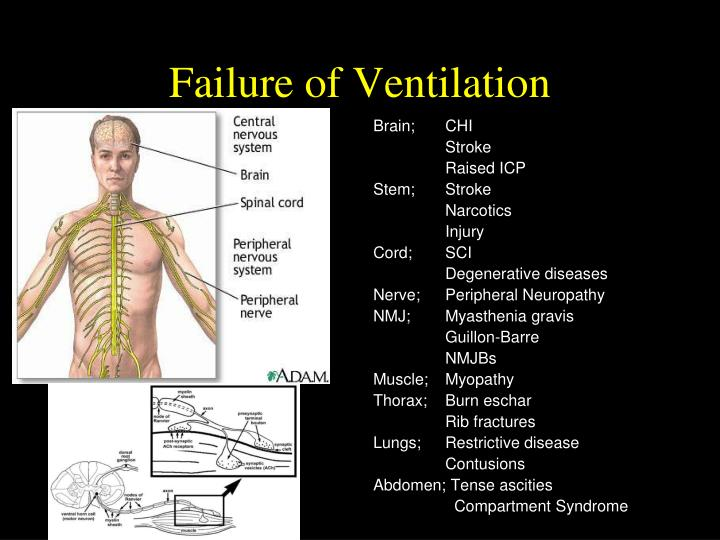 Failure of Ventilation